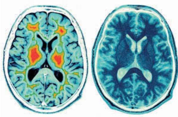 your-brain-on-meditation3